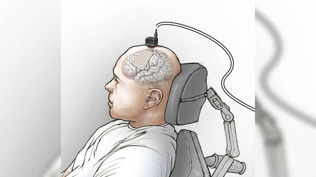 Man Speech Implant